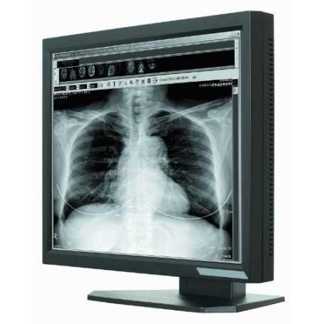 """Ecran LCD Médical 21.3"""" : ONYX-2321"""