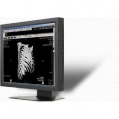 """Ecran LCD Médical 19"""": ONYX-2419"""