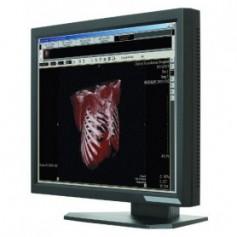 """Ecran médical 21.3"""" LCD : ONYX-2421"""