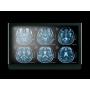 "22"" Fanless Slim Medical LCD Monitor : MEDDP-622"